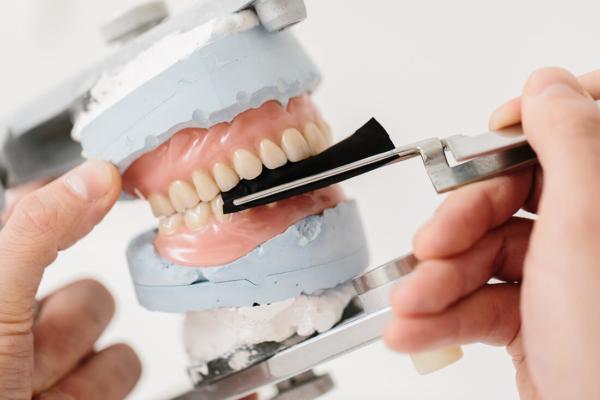 Zahnersatz - Leistungen von Zahnarzt Bittelmeyer und Zahnärztin Deister - Zahnarzt München