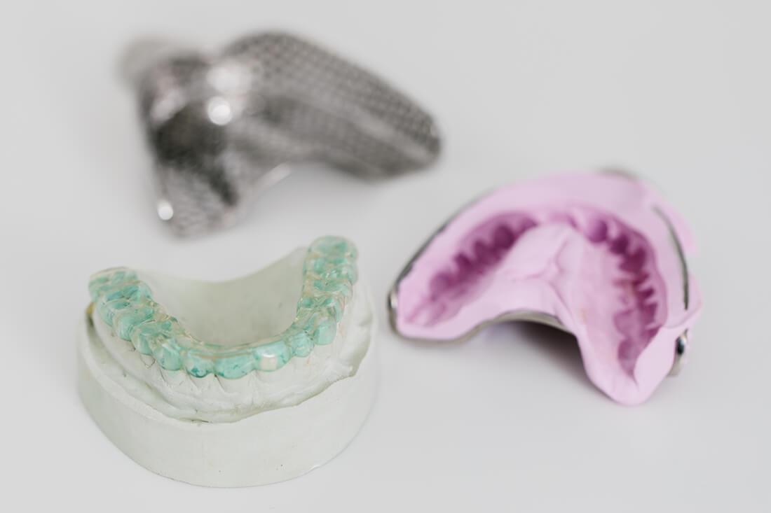 Schienentherapie bei CMD - Leistungen von Zahnarzt Bittelmeyer und Zahnärztin Deister - Zahnarzt München
